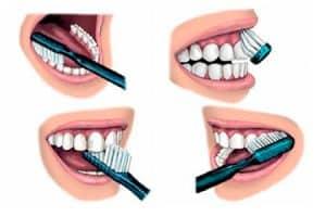 Cómo lavarte los dientes con el método Bass