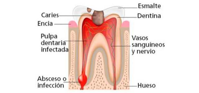 Infección de un absceso