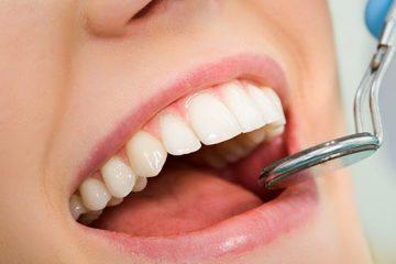 Cirugía periodontal: alargamiento coronario