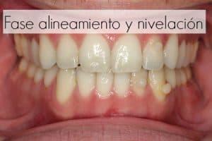 alienar dientes