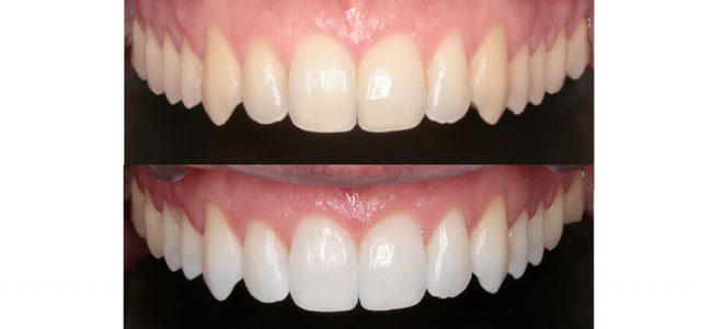 El blanqueamiento aclara varios tonos los dientes
