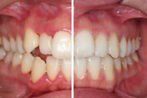 Antes y después: brackets estéticos