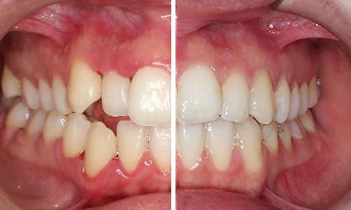 Estoy pensando en llevar brackets de zafiro qu ventajas tienen - Como alinear los dientes en casa sin brackets ...
