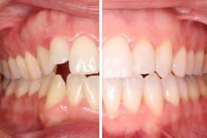 Antes y después: mordida abierta y apiñamiento dental