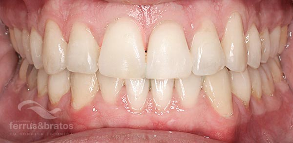 Caso de éxito con ortodoncia Invisalign