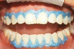 Cómo se hace el blanqueamiento dental con lámpara