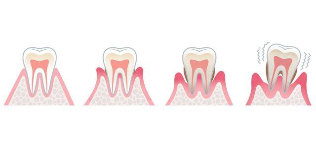 Cómo se trata la gingivitis
