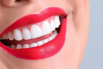 Obsesión por los dientes