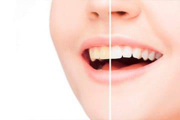 Blanquear dientes con agua oxigenada