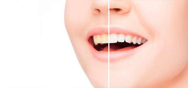 Como quitar lo amarillo de los dientes postizos