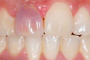Blanqueamiento interno sobre endodoncia