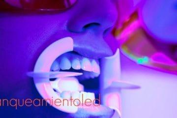 blanqueamiento con laser madrid