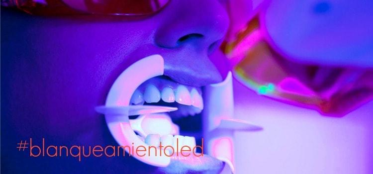 Blanqueamiento Dental Con Luz Fr 237 A 191 En Qu 233 Consiste