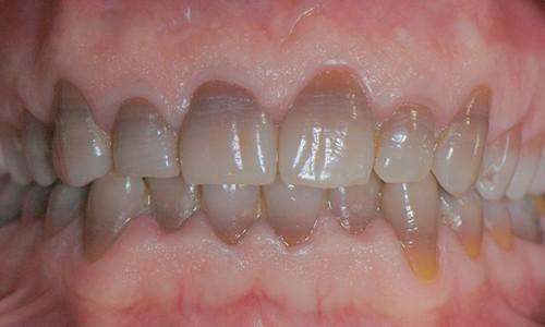 blanquear dientes con laser precio