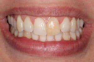 Blanqueamiento de un solo diente