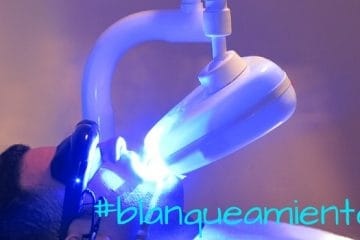 blanqueamiento led
