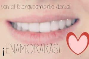 blanqueamiento dientes no vitales