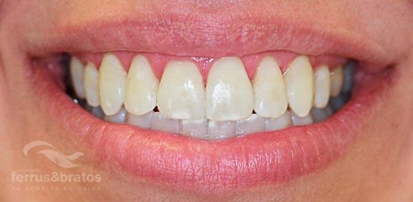 Caso de éxito de blanqueamiento dientes amarillos