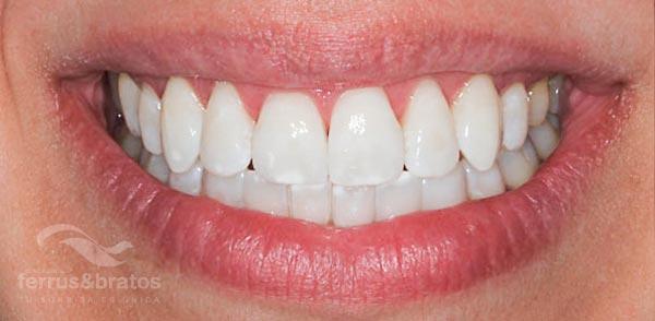 Caso de éxito de blanqueamiento dental por dientes amarillos