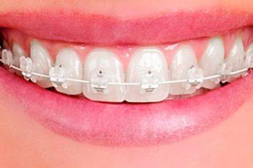 Precio de la ortodoncia de zafiro