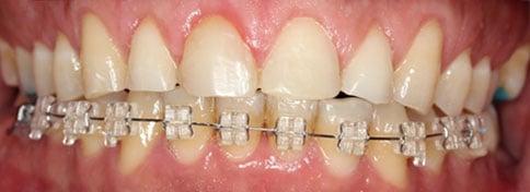 Bruxismo (Después de la gingivectomía)
