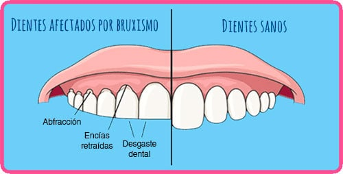 Desgaste dental a causa del rechinamiento