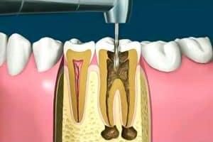 Endodoncia por caries profunda