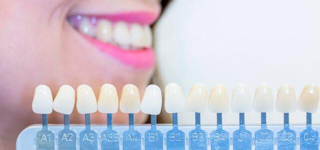 tipos de coronas dentales y precios