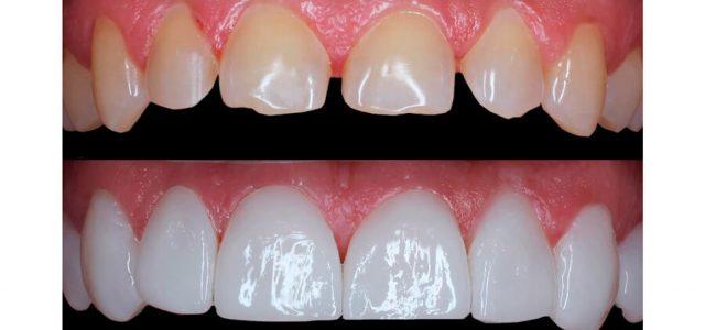 Modifican la forma y color de los dientes