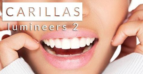 Carillas dentales lumineers 2