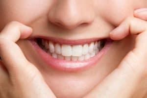 Carillas para juntar dientes separados
