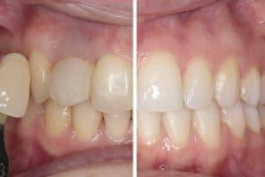 Caso blanqueamiento dental láser