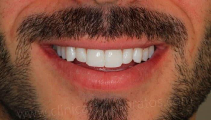 blanqueamiento dental led despues