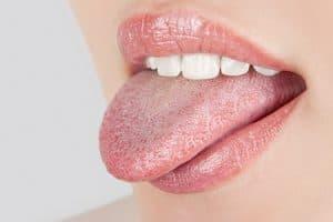 Candidiasis oral en la lengua