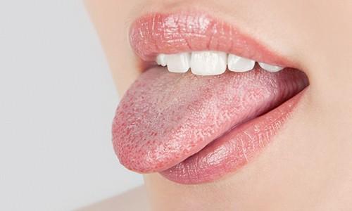 La candida boca de