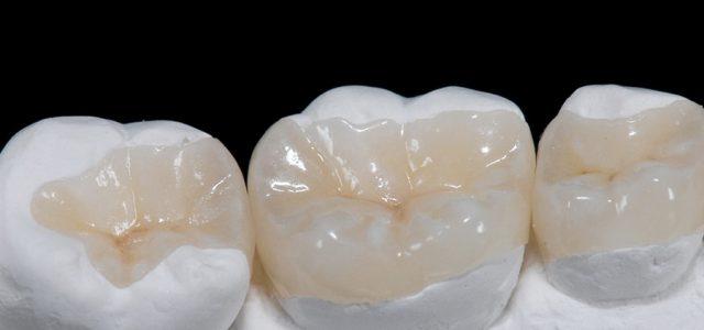 Cómo es una incrustación dentaria