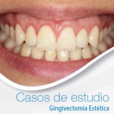 casos de estudio de gingivectomia estetica