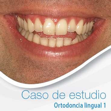 paciente de ortodoncia lingual