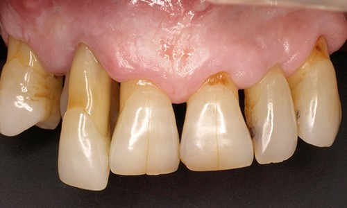 tratamiento periodontitis cronica moderada generalizada