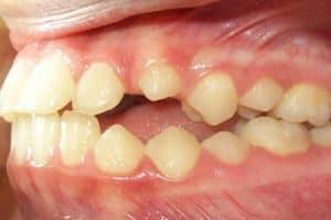Anquilosis dental en niños y en adultos