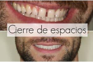 diastemas despues de ortodoncia
