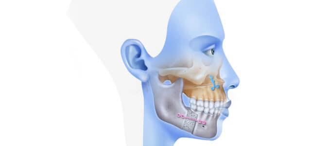 Cirugía maxilofacial recuperación