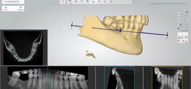 Cirugía guiada por ordenador