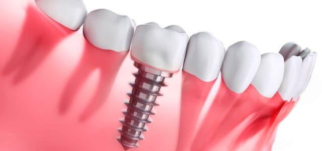 Cirugía de implantes