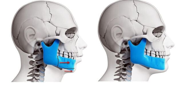 Cirugía ortognática