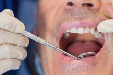 Cirugía periodontal para tratar periodontitis