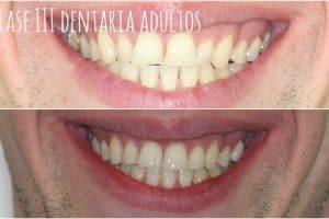 tratamiento de clase iii en denticion mixta