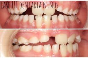clase iii molar