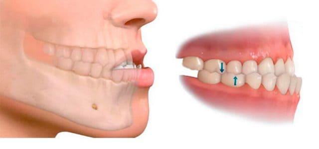 La mandíbula inferior queda hacia afuera