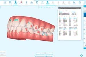 Antes y después de ortodoncia con Invisalign